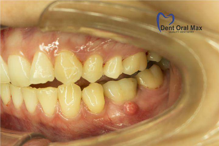 Infectiile - abces dentar