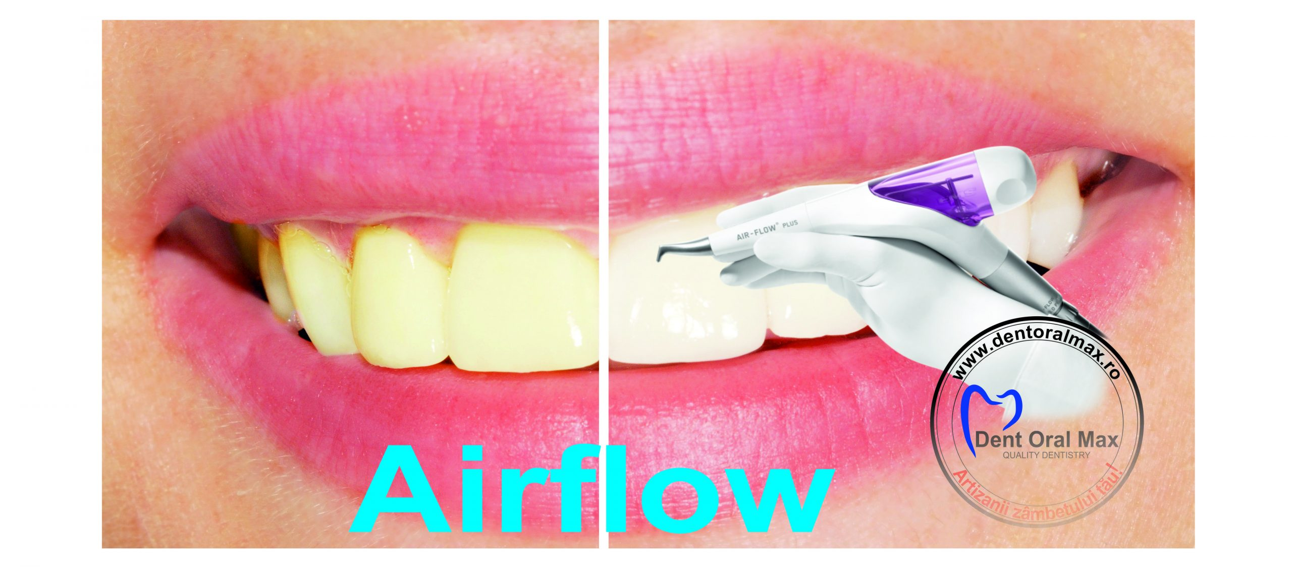 AirFlow 10 before after