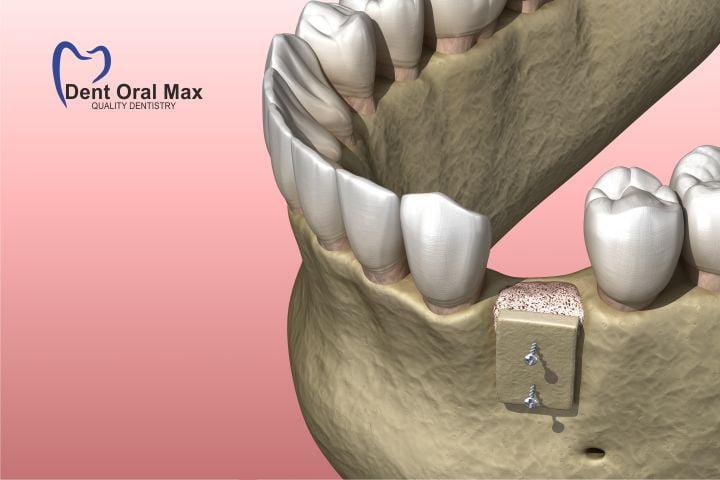 Chirurgia orala