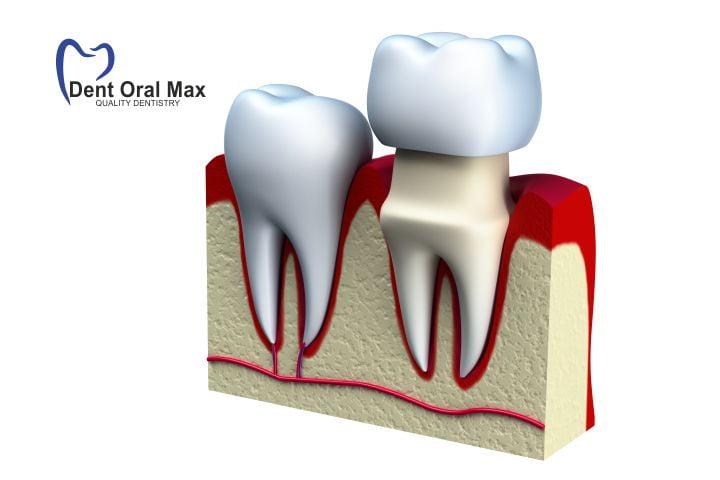 protetica clasica - Coroane dentare pe dinti naturali