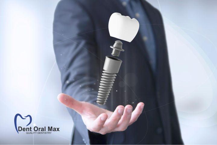 Coroanele dentare pe implanturi