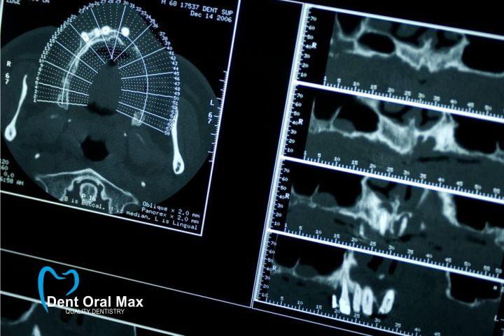 Examinare radiologica