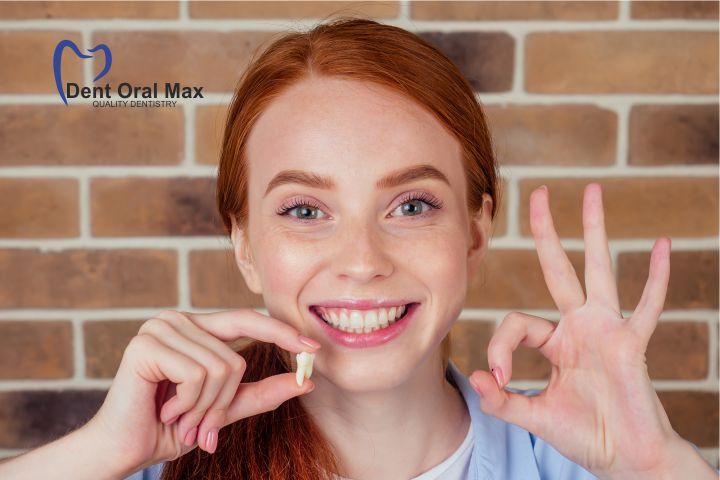 Extractiile dentare