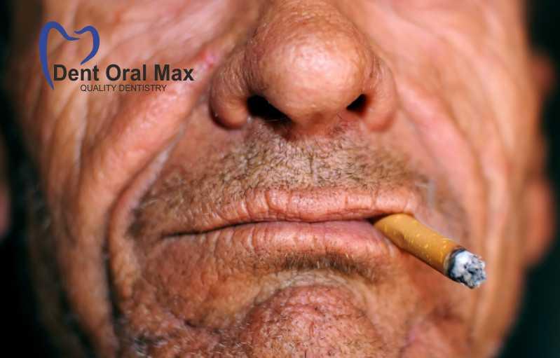 Fumatul și ridurile