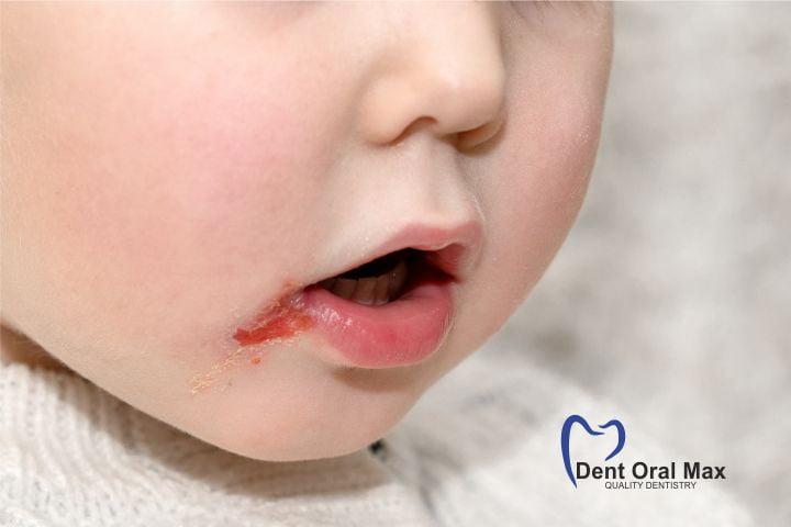Herpesul la copii