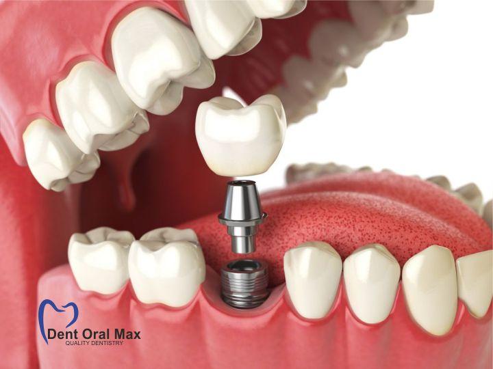 Implantarea