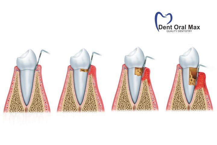 Parodontologia - evolutie