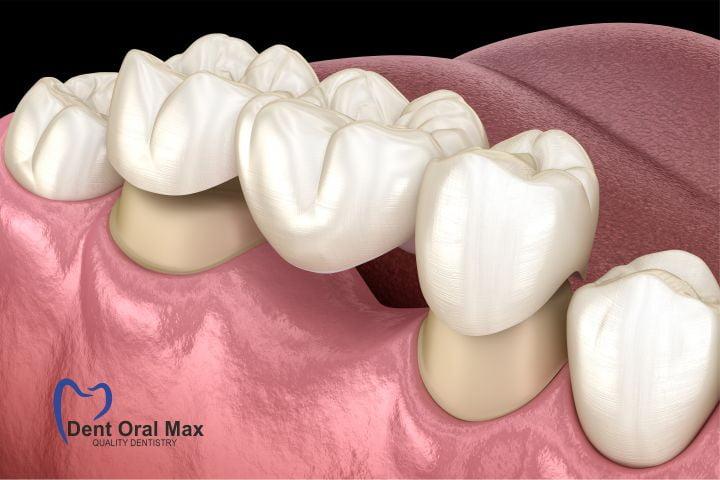 Punte dentara pe dinti naturali