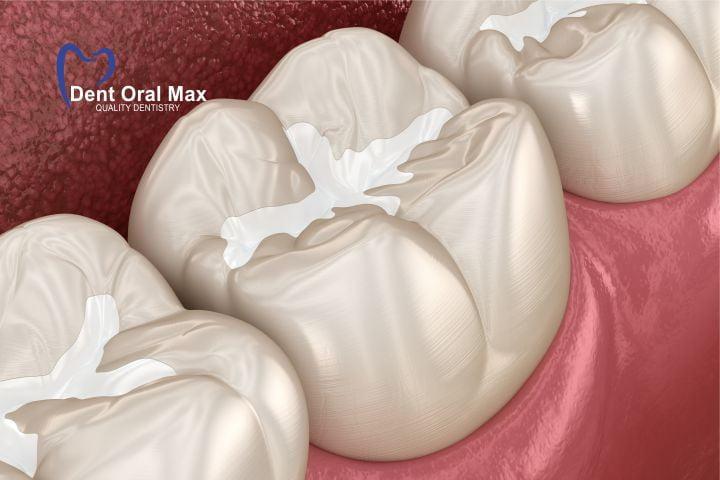 Sigilările dentare