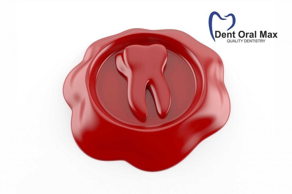 Sigilarile dentare 2