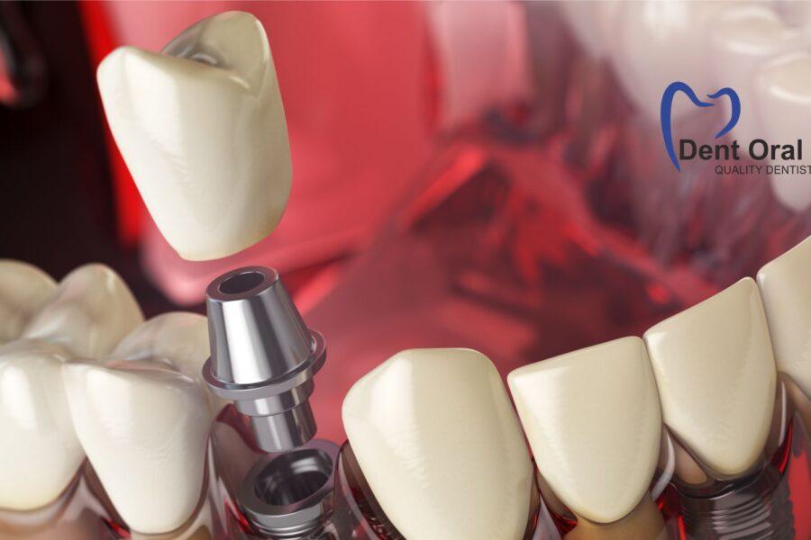 Cum alegem implantul potrivit
