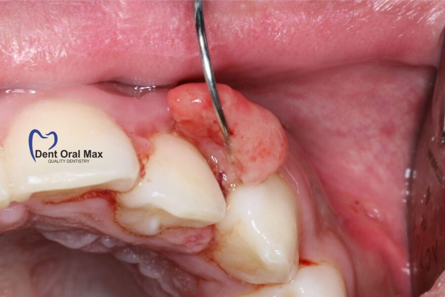 Cum prevenim tumorile în cavitatea orala