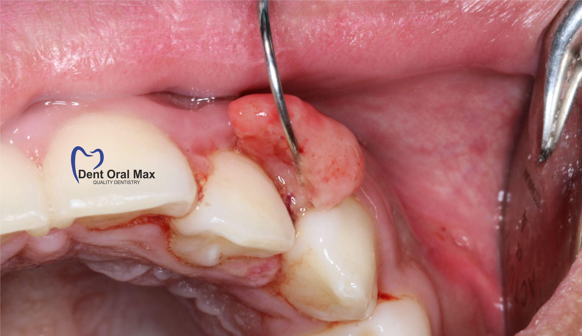 Cum prevenim tumorile în cavitatea orală?