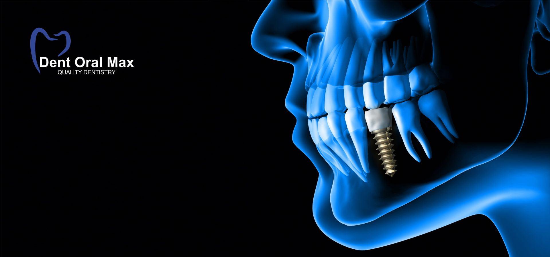 Sunt implanturile dentare sigure