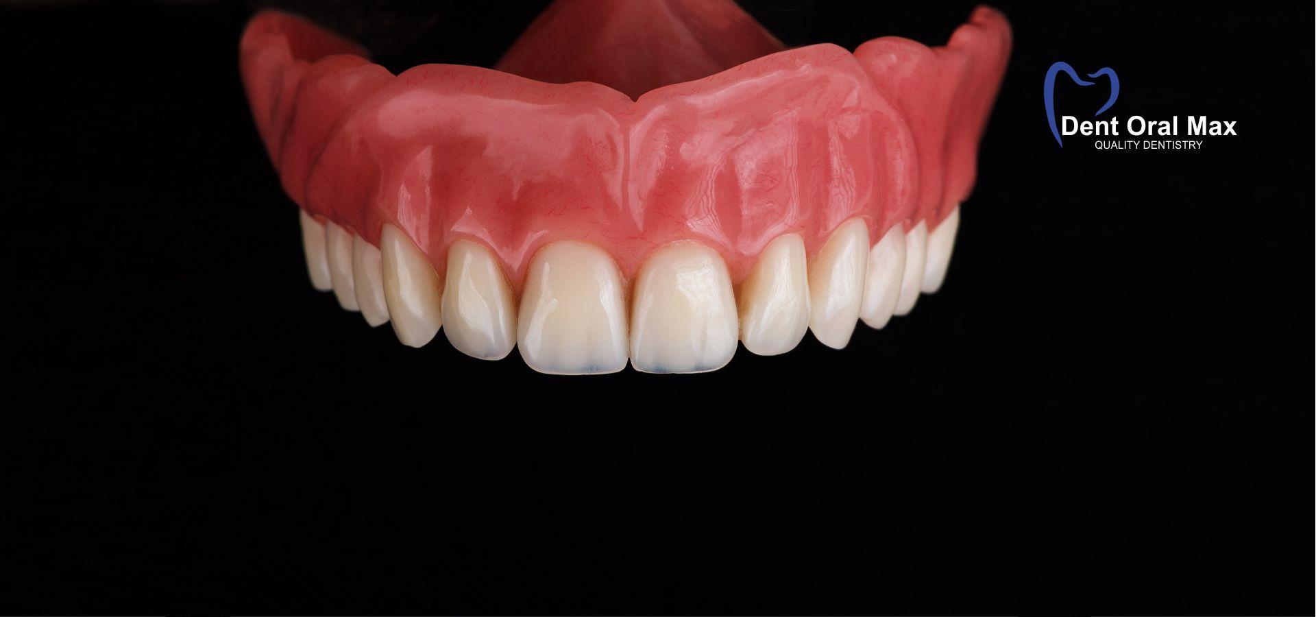 Protezele mobilizabile pe implanturi dentare