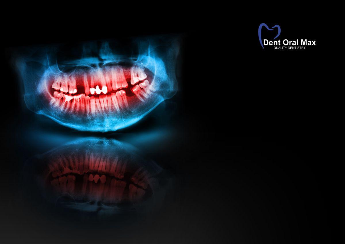De dintele tratat - OPT