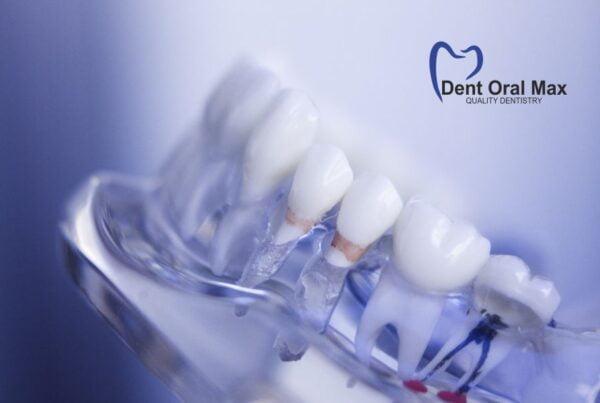 Cum evitam urgentele stomatologice