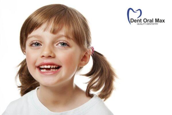 Ce riscam daca ne pierdem dintii