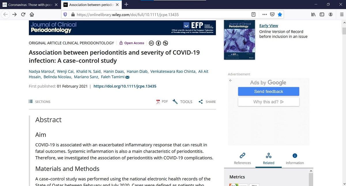 Severitate infecție COVID19 corelata cu boala parodontală